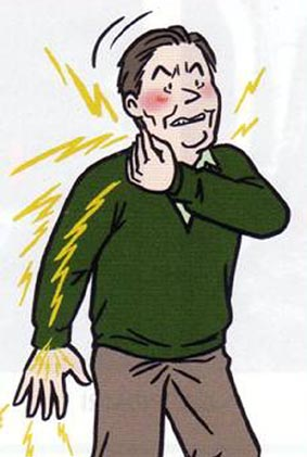 頚椎ヘルニアに苦しんでいる方のイラスト