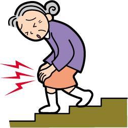 変形性膝関節症に悩む女性のイラスト