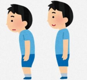 起立性調節障害の原因である不良姿勢のイラスト